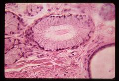 Thumbnail of Digestive system: Oral cavity, salivary glands (OckHS-163)