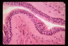 Thumbnail of Digestive system: Oral cavity, salivary glands (OckHS-171)