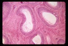 Thumbnail of Male reproductive system (OckHS-341)