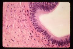 Thumbnail of Male reproductive system (OckHS-352)