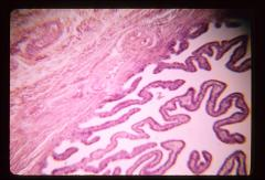 Thumbnail of Female reproductive system (OckHS-368)