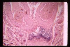 Thumbnail of Female reproductive system (OckHS-373)