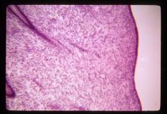 Thumbnail of Female reproductive system (OckHS-374)