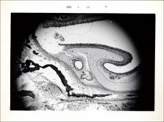 Thumbnail of Cartilage, Bone and Bone Development (OckHS-568)
