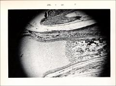 Thumbnail of Cartilage, Bone and Bone Development (OckHS-569)